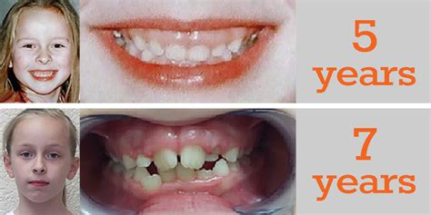 Young kids and Airways correction - Ever Smile Dental Care