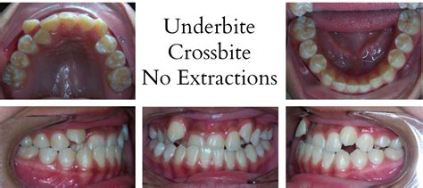 Before and After - Orthodontist   Las Vegas, NV   Mai