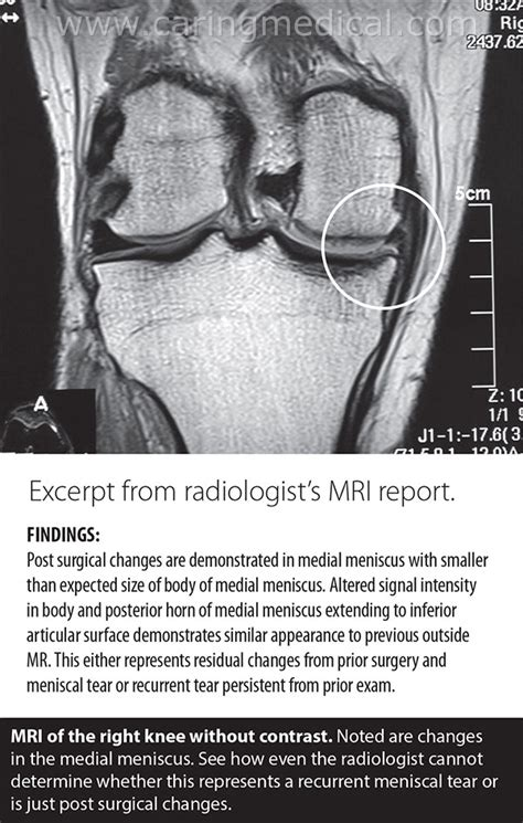 Patients ask: Is my MRI accurate? – Caring Medical