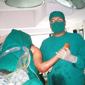 Various Causes of Frozen Shoulder - Common Reason Of