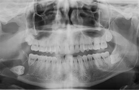 Oral Pathology and Jaw Cysts – Dentofacial