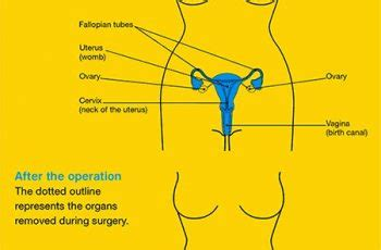 Can Uterine Cancer Be Detected In A Blood Test - Cancer
