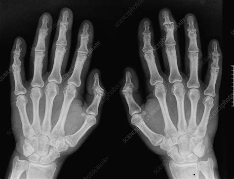 Osteoarthritis in the hands, X-ray - Stock Image - C016